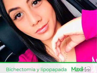 Bichectomia y lipopapada