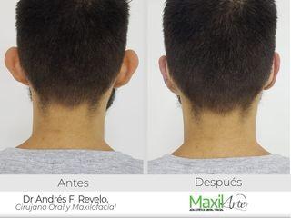 Otoplastia, antes y después Maxilarte