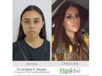 Cirugía maxilofacial - 638493