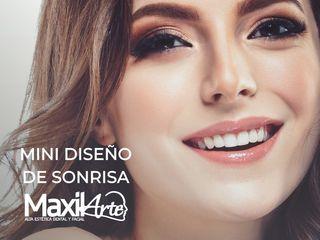 MINI DISEÑO DE SONRISA MAXILARTE.