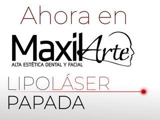 Lipolaser Papada | Maxilarte