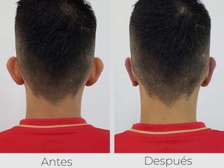 Antes y Después otoplastia   Clínica Maxilarte Cali