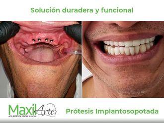 Implantes dentales - 641178