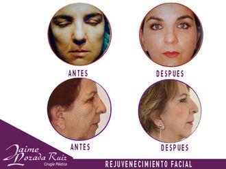 Rejuvenecimiento facial-553888