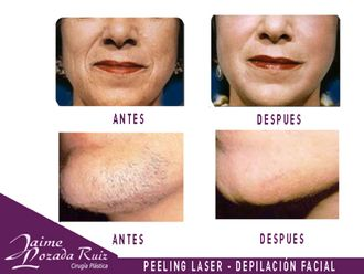 Peeling-553895