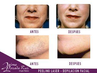 peeling y depilacion facial