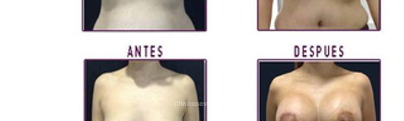 aumento senos2 edit