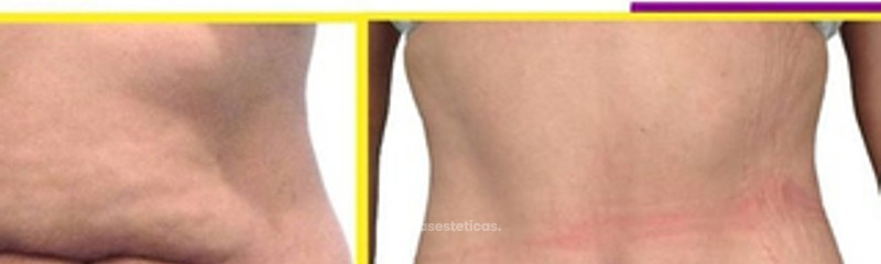 Antes y despues de abdominoplastia