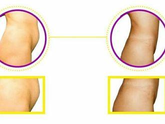 Abdominoplastia-598239