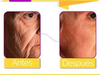 Rejuvenecimiento facial-598242