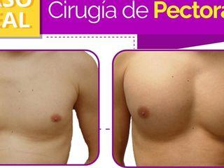 Antes y despues de cirugia de pectorales