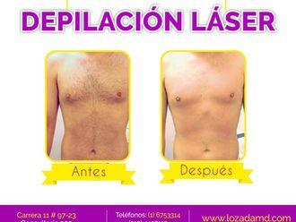 Depilación Laser - 598244