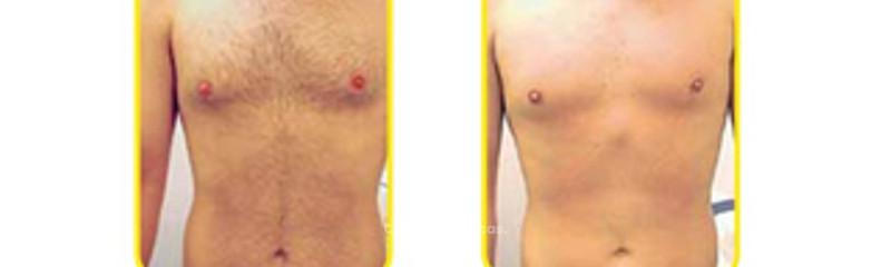 Antes y despues de depilacion laser