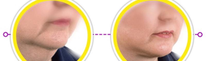 Antes y despues de lipopapada