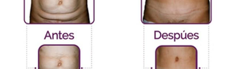 Antes y despues de abdominiplastia