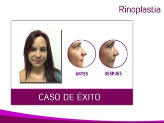 Rinoplastia-598248
