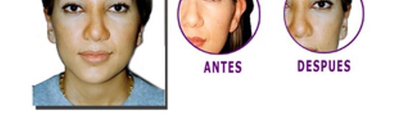 Antes y despues de cirugia de orejas