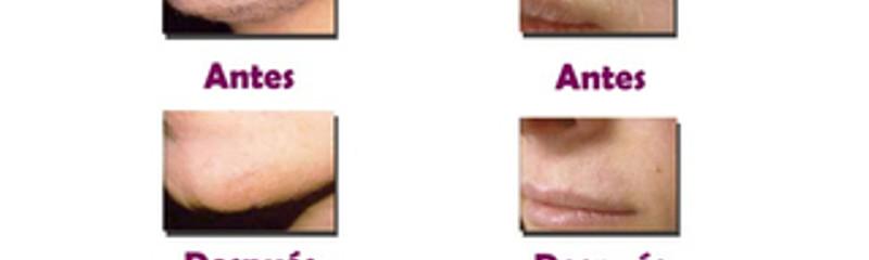Antes y despues de depilacion laser definitiva