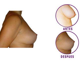 Mamoplastia de reducción-598503