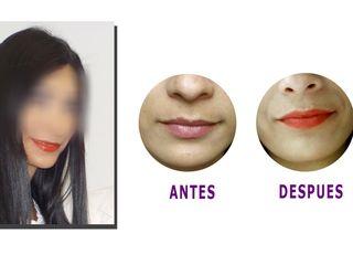 Acido Hialuronico en labios