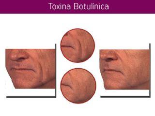 Antes y despues de relleno facial