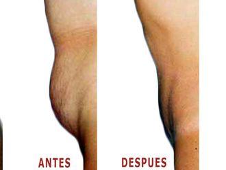 Abdominoplastia-598509