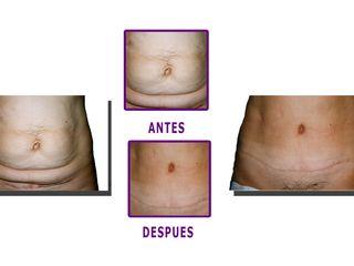 Antes y despues de abdominoplastia