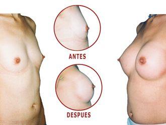 Mamoplastia de aumento-598520