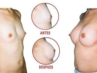 Antes y despues de aumento de mama