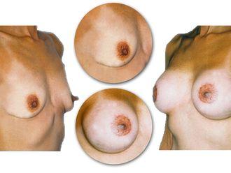 Mamoplastia de aumento-598530