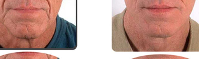 Antes y despues de cirugia en el cuello