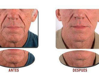 Rejuvenecimiento facial-598536