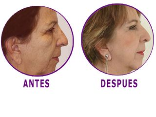 Antes y despues de cirugia facial