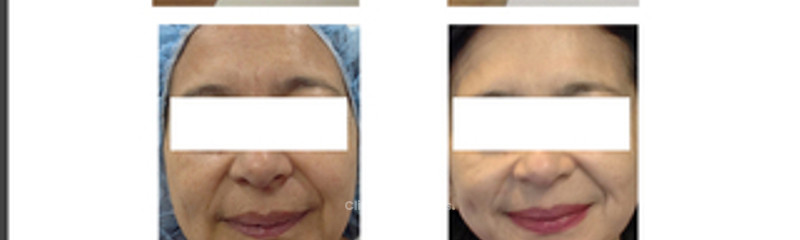 Antes y despues de cirugia facial