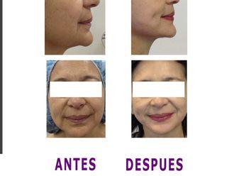 Lifting facial-598539