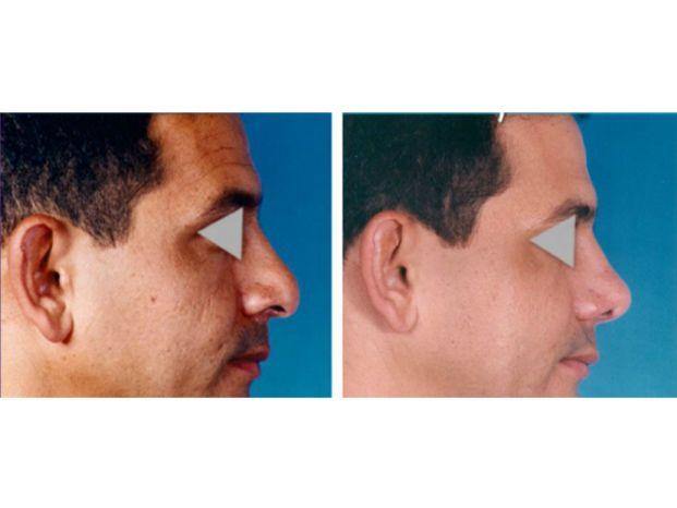 Dr Jose M Barreto A Clinicasesteticas Com Co
