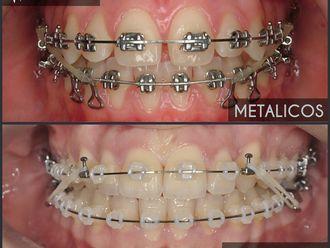 Ortodoncia - 624479