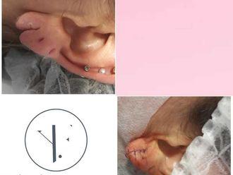 Rejuvenecimiento facial-634732