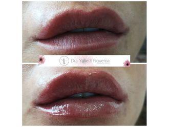 Aumento de labios-660453