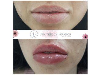 Aumento de labios-660464