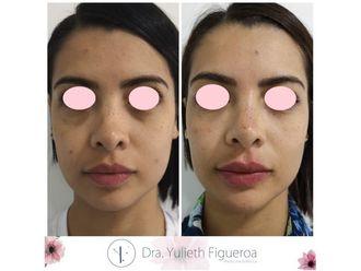 Aumento de labios-660475