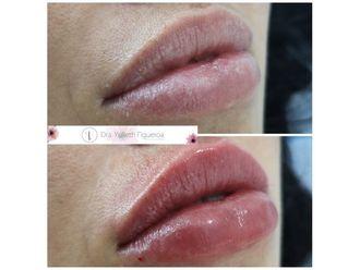 Aumento de labios-660495