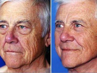 Aplicacion de botox