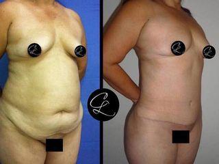 Antes y despues de  abdominoplastia con lipoescultura