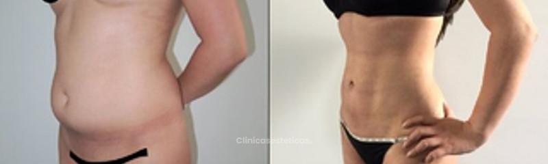 Antes y despues de lipoescultura CL de Alta Definición y mamoplastia de aumento