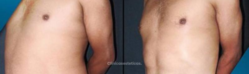 Antes y despues de Lipoescultura de Alta Definición con marcación abdominal