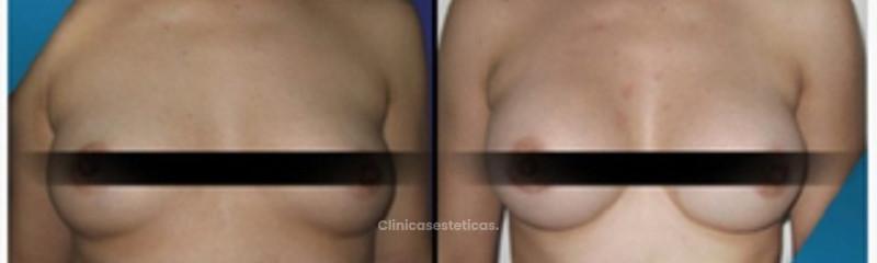 Antes y despues de mamoplastia de aumento