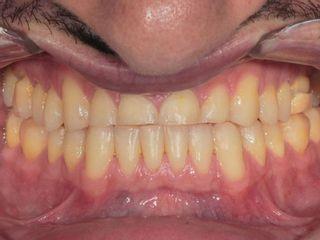 Caso de desgaste dental moderado