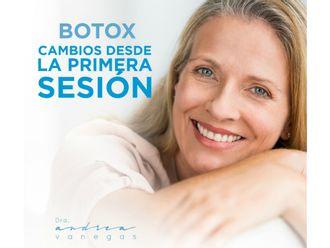 Bótox - 626961