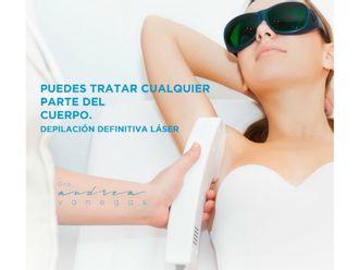 Depilación Laser - 626962